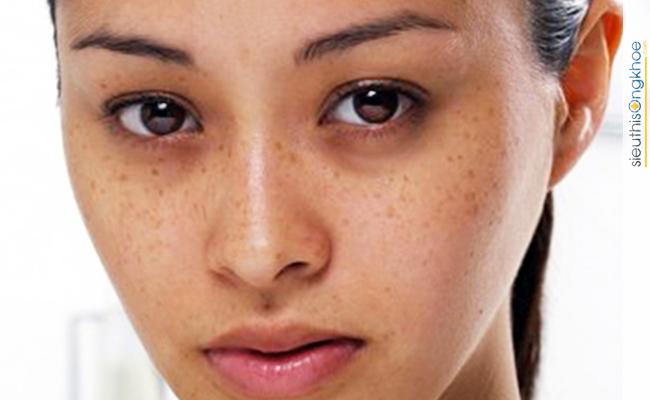 Viên uống trị nám Melast xóa mà các đốm nám, tàn nhang trên da