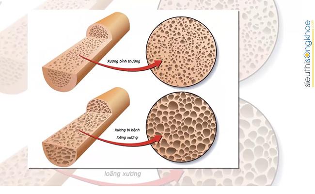 phòng ngừa loãng xương của cây chùm ngây