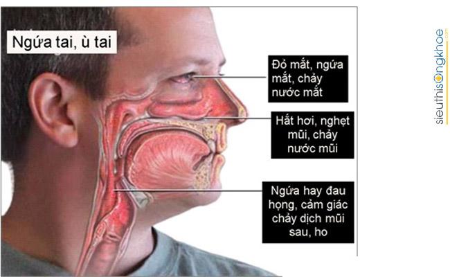 cách điều trị viêm xoang