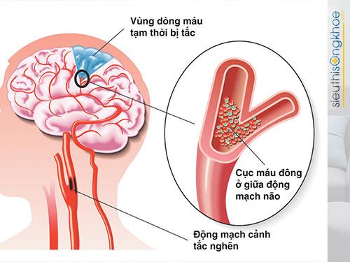 nguy cơ biến chứng của bệnh viêm xoang